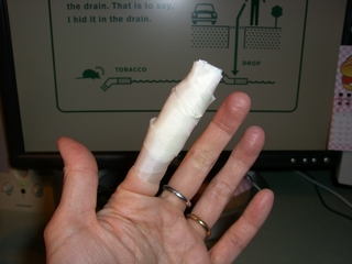 finger injury.JPG